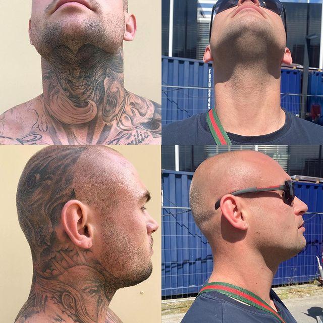 Fjernelse af tatovering