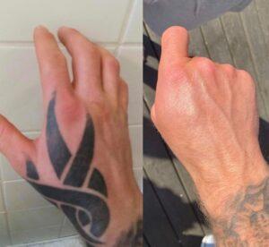 Fjern tatoveringer